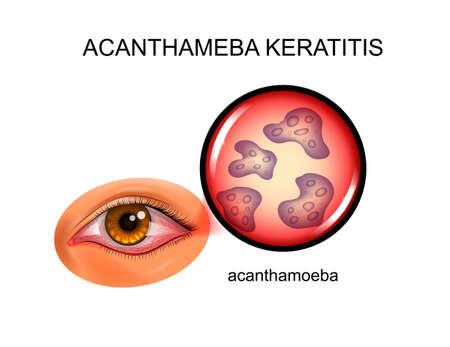 vector illustration of acanthamoebic keratitis. infectious inflammation of the eyelids