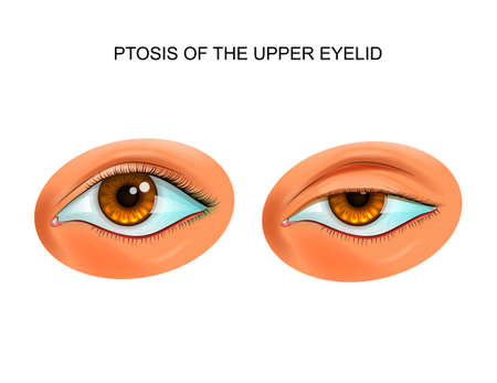 vector illustration of ptosis of eyelid. paralytic drooping of the eyelid