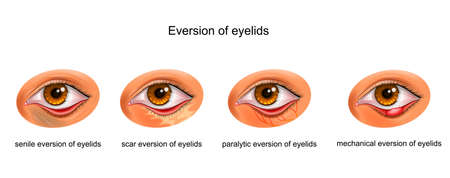vector illustration of the cause of the eyelid Ilustração