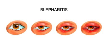 vector illustration of inflammation of the eyelids. blepharitis
