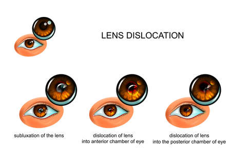 dislocation of the lens of the eye