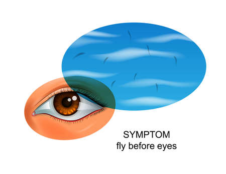 flies before eyes. symptom of eye diseases Illustration