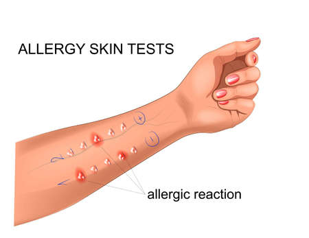 scarification tests for allergies  イラスト・ベクター素材