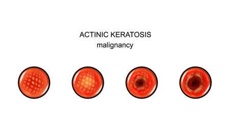 actinic keratosis. malignization Illustration