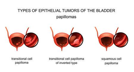 vector illustration of bladder epithelial tumors. urology Illusztráció