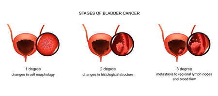 stages of bladder cancer Illustration