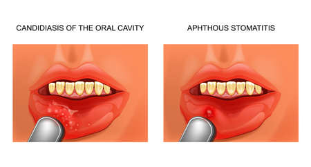 candidiasis and aphthous stomatitis