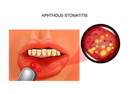 aphthous stomatitis. aphthae