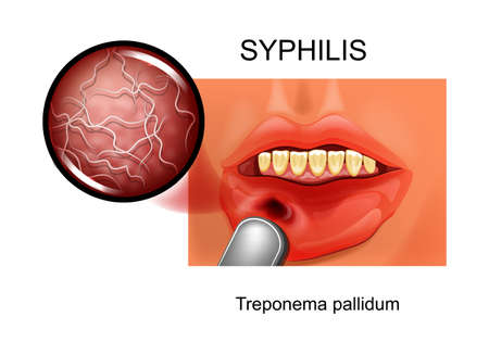 syphilis. chancre. Treponema pallidum
