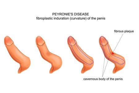 chordee. Peyronies disease.