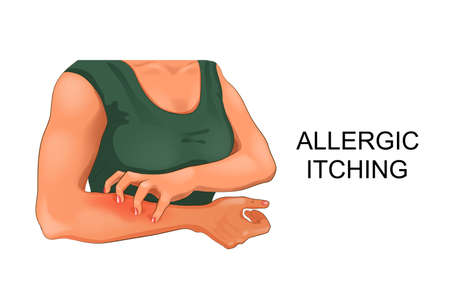 vector illustration of allergic itching of the skin Illustration