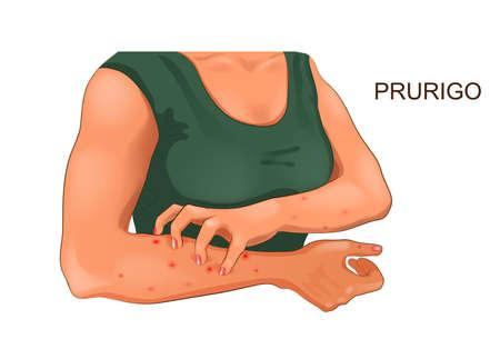 ilustración vectorial de picazón alérgica de la piel