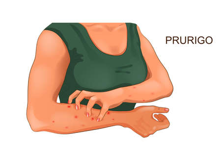 vector illustration of allergic itching of the skin Ilustracja