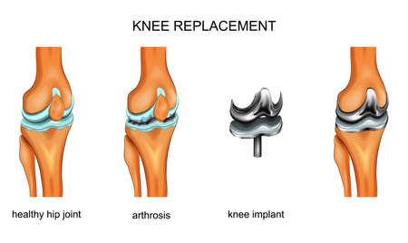 vector illustration of a total knee replacement Çizim