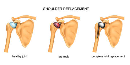 illustration vectorielle de remplacement de l'épaule. chirurgie. traumatologie