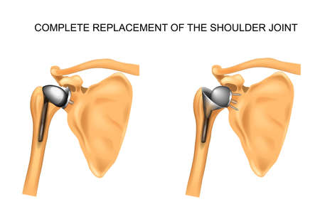 vector illustration of the types of prosthesis of shoulder Vectores