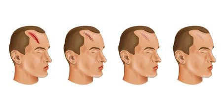 illustration vectorielle d & # 39; une blessure à la tête coupée