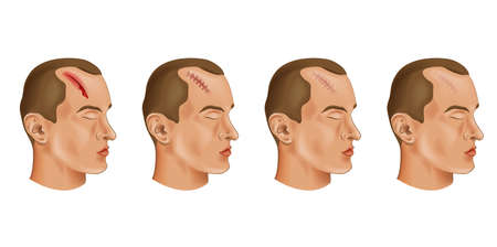 vector illustration of a cut head wound Illustration
