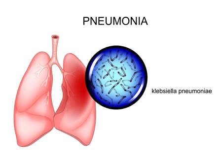 vector illustration of pneumonia. causative agent - Klebsiella