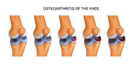 osteoarthritis of the knee Illustration