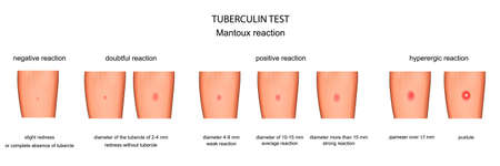 vector illustration of the assessment of reaction to a Mantoux test