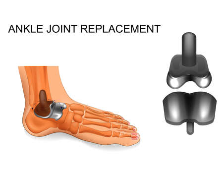 foot skeleton. ankle replacement Illustration
