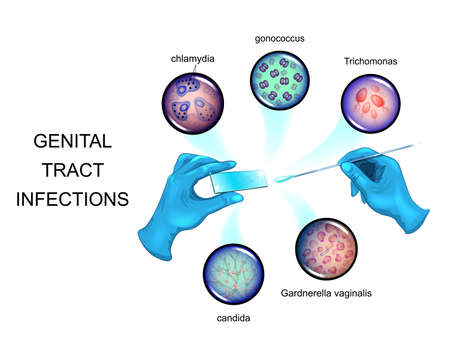 Ilustración vectorial de patógenos de infecciones de transmisión sexual. Ilustración de vector