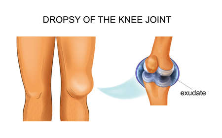 hydrarthrosis of the knee joint Banque d'images - 112482558