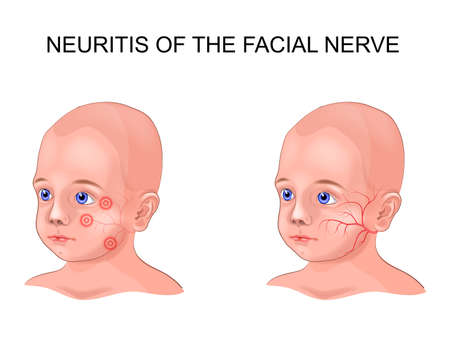 vector illustration of facial nerve neuritis in a child