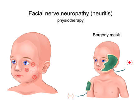 vector illustration of physiotherapy Bergony mask of facial nerve neuritis in a child