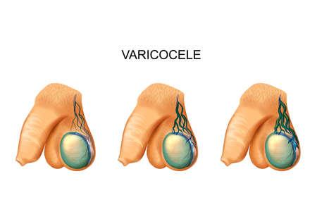 varicocèle sur testicule Vecteurs