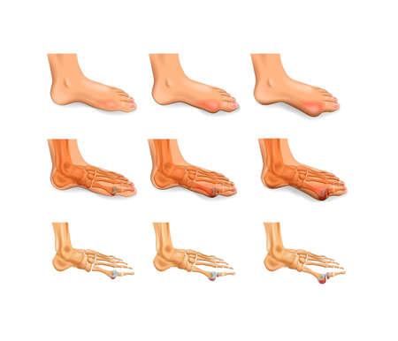 vector illustration of arthritis, arthrosis of the big toe