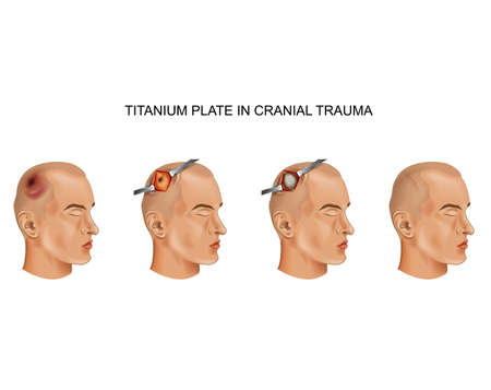 vector illustration of titanium plate in traumatic brain injury