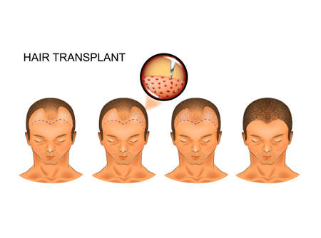 vector illustration of the process of hair transplantation of the occipital part of the head 矢量图像