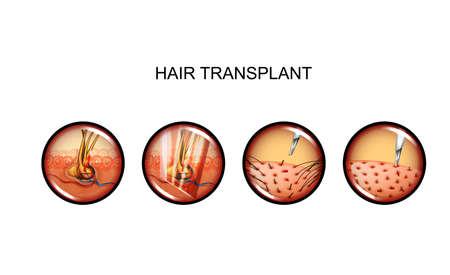 vector illustration of hair transplantation. head. alopecia