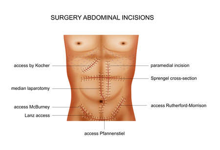 vector illustration of surgical incisions of the abdominal cavity 矢量图像