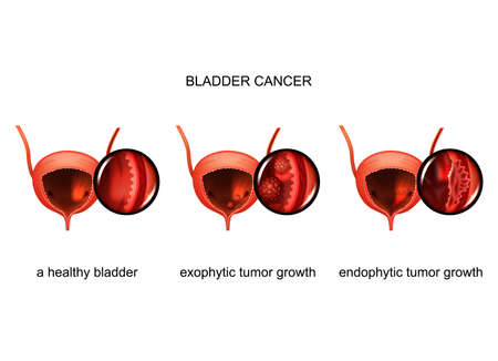 vector illustration of exophytic and endophytic growth of cancer in the bladder