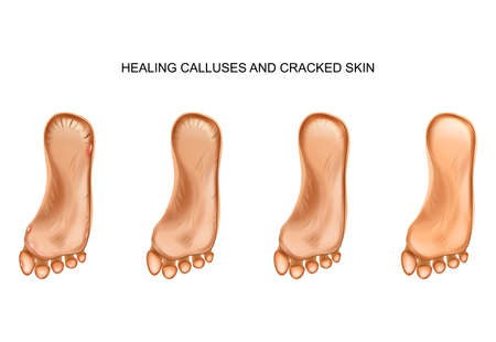 healing calluses and cracked heels