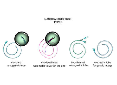 vector illustration of the types of nasogastric tubes