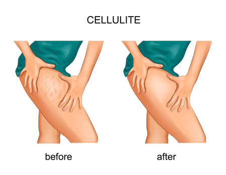 vector illustration of cellulite on a woman's thigh Ilustração