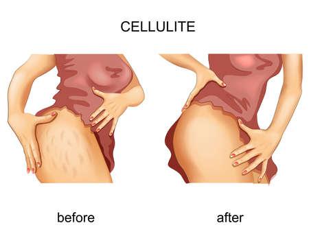 cellulite on a woman s thigh Ilustração