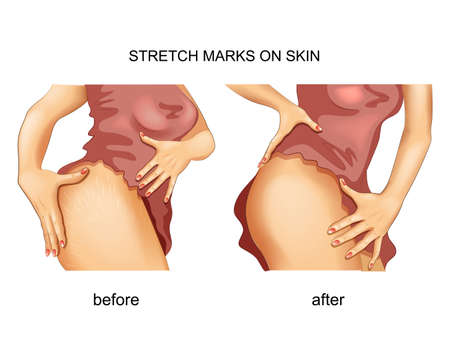 stretch marks on the skin.