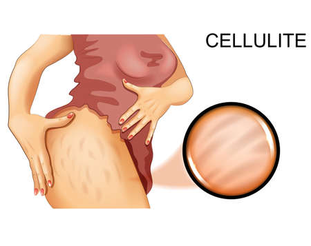 cellulite on a womans thigh
