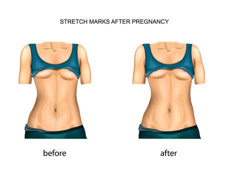 임신 후 스트레치 마크. 이전과 이후.