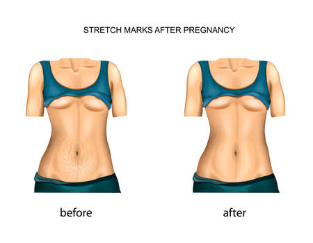 stretch marks after pregnancy. before and after. Ilustração