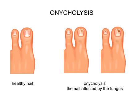 Nagelpilzinfektion, Onycholyse