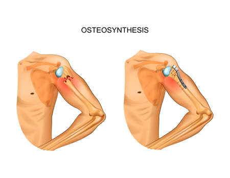 vector illustration of osteosynthesis in the fracture of the humerus head