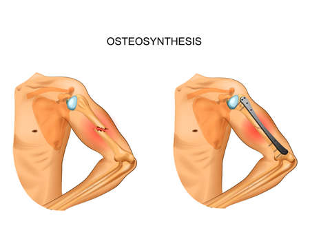 osteosynthesis of the body of the humerus Vectores