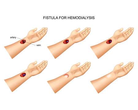 vector illustration of the installation of a fistula for hemodialysis Stok Fotoğraf - 125038158