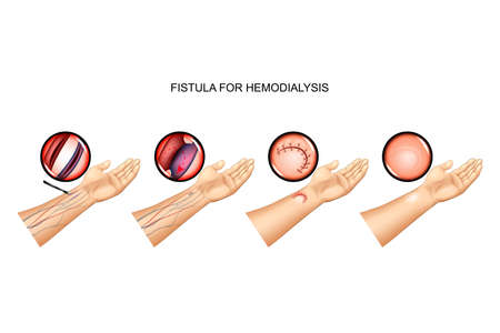 vector illustration of fistula for hemodialysis. suturing of vein and artery Çizim